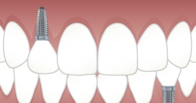 Cosmetic Dentist Land O' Lakes